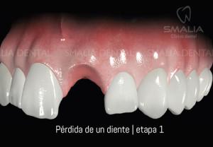 perdida_diente